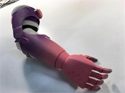 Активные тяговые протезы предплечья «Киби